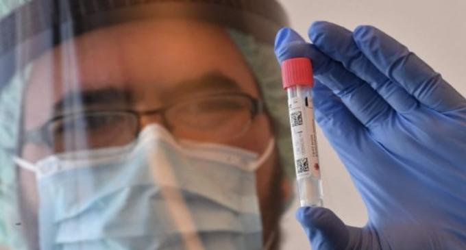 Coronavirus, il bollettino di oggi 31 luglio: 379 contagi, 9 morti e 178 guariti. Rt sotto 1 ma casi in aumento